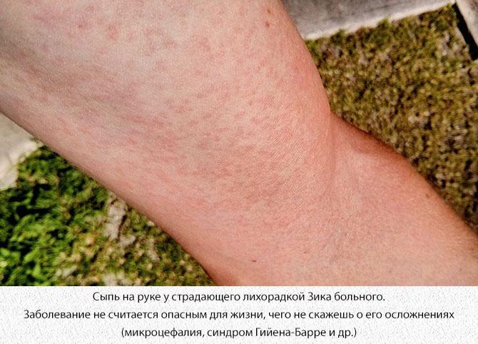 Сыпь на руке у страдающего лихорадкой Зика больного