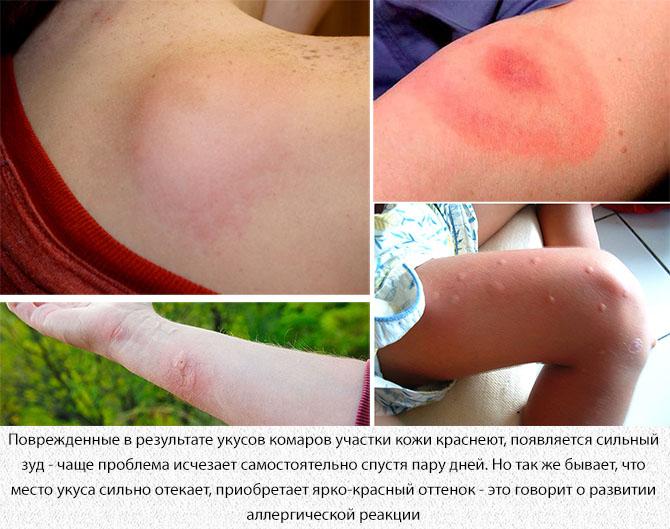 Отеки от укуса комаров